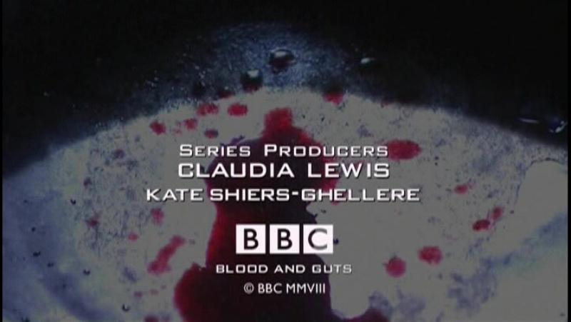 BBC Кровь и внутренности История хирургии 4 Обретение лица